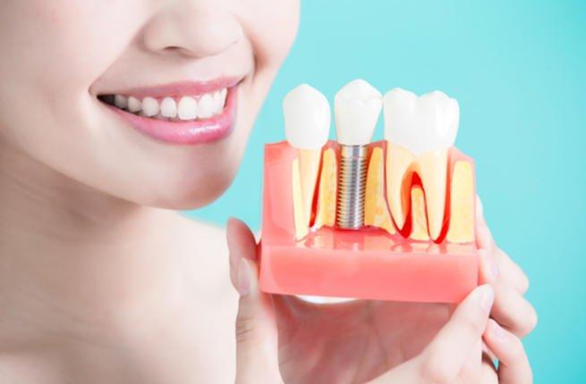 الحلول المستدامة لإستبدال الأسنان