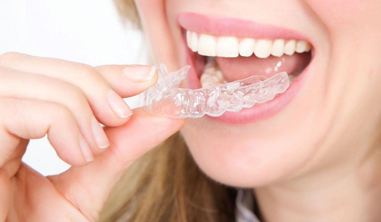 الحلول الأولى لعلاج بروز الأسنان وعدم انتظامها